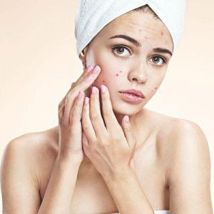 Acne & Blemishes